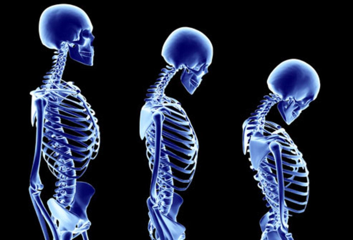 osteopenia trofes