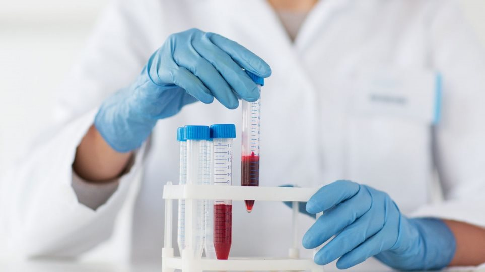 201126000401 190604140754 blood test